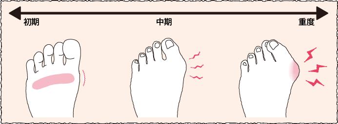 痛みの推移で見る外反母趾の経過