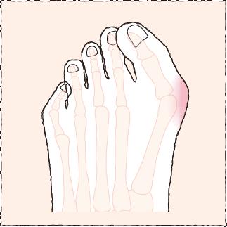 靭帯製外反母趾