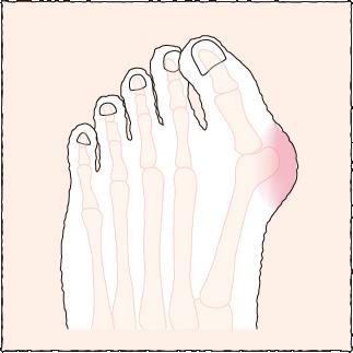 ハンマートゥ性外反母趾