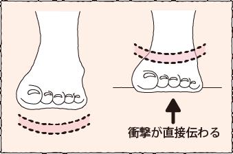 仮骨性外反母趾
