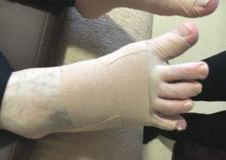 カサハラ式外反母趾治療風景